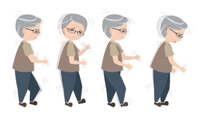 Cach chua va tri benh Parkinson