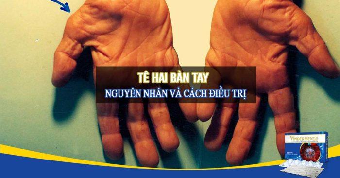 Tê hai bàn tay: Nguyên nhân và cách chữa trị