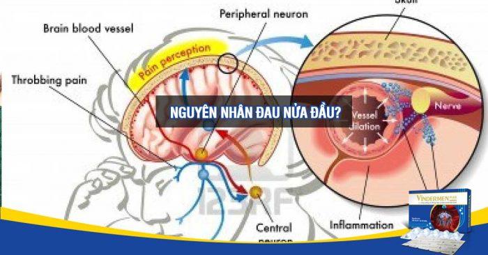 Nguyên nhân dẫn tới các cơn đau nửa đầu ?