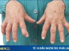 Bị tê 10 đầu ngón tay là bệnh gì ?