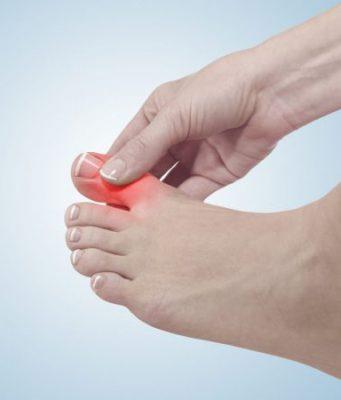 Truy tìm nguyên nhân gây tình trạng tê bì ngón chân cái